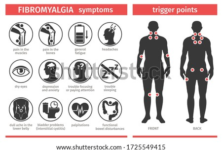 Symptoms and signs of fibromyalgia. Tender points. Infographic. Template for use in medical agitation. Vector illustration, flat icons.