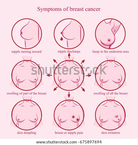Symptoms of breast cancer. Medicine, pathology, anatomy, physiology, health. Info-graphic. Vector illustration. Healthcare poster or banner template.