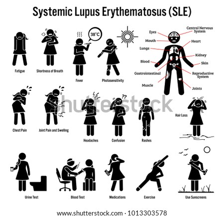 Systemic Lupus Erythematosus SLE Autoimmune Disease Icons. Pictogram depicts signs, symptoms, diagnosis, and treatment of lupus SLE disease.