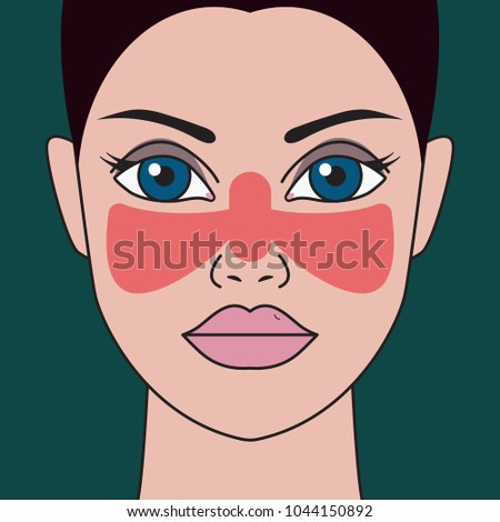 Systemic lupus erythematosus. Woman with red spot on her face in shape of butterfly. Vector illustration