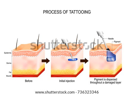 tattoo process. The tattooing process causes damage to the epidermis and dermis. Every time the needle penetrates, it causes a wound that alerts the body immune system.