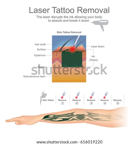 Tattoo removal is most commonly performed using lasers that break down the ink particles in the tattoo. Education info graphic. Vector design.