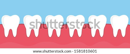 teeth in the gum, vector illustration.