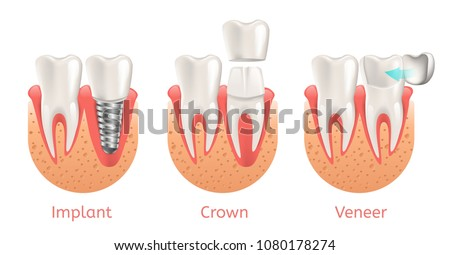 Teeth Procedure of Implant Veneer Crown Restoration. Vector Illustration Poster with Process Stomatology Prosthesis. 3d Realistic dental Banner.