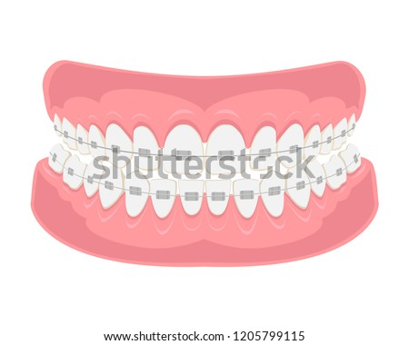 Teeth with braces on white background. Alignment of bite of teeth, correct bite of teeth. Dental jaw with braces, Dental braces. Vector illustration.