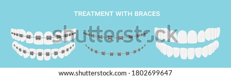 Teeth with or without braces. Arch braces without teeth. Orthodontic dentistry. The alignment of the teeth. Healthy lifestyle and dental care. Beautiful white teeth. Isolated flat vector illustration