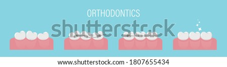 The concept of teeth alignment with braces. Poster with crooked teeth, in braces and healthy even. Simple teeth in a row. Orthodontic treatment. Isolated vector illustration. Flat style.