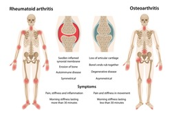 The difference between rheumatoid arthritis and osteoarthritis. On the body, arthritic sites are marked. Images of joints affected by rheumatoid arthritis and osteoarthritis. Vector illustration
