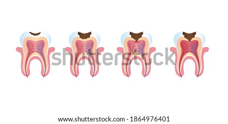 The healthy white tooth decays, stages and types of caries. Vector stock illustration.  ストックフォト ©