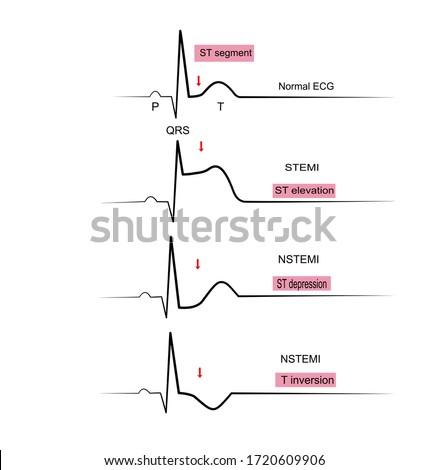 The 1-lead ECG in STEMI(ST Elevation Myocardial Infraction and NSTEMI(Non ST Elevation Myocardial , Electrocardiographic Diagnosis criteria  Photo stock ©