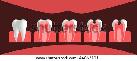 the stages of caries