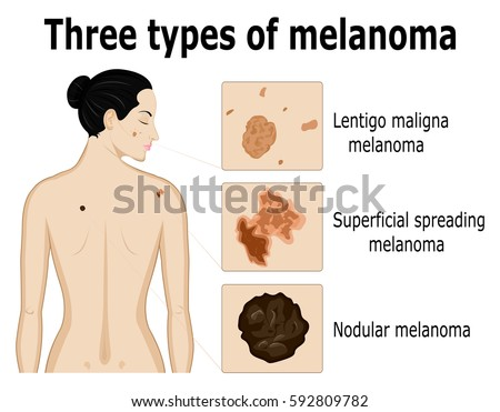three types of melanoma that