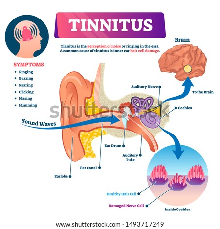 Tinnitus vector illustration. Labeled shingles noise perception problem. Ear structure scheme with inner hair cell damage. Illness symptoms list and cochlea closeup. Ringing feeling medical diagnosis.