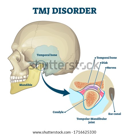 TMJ disorder vector illustration. Labeled jaw condition educational scheme. Diagram with joint clicking and pain anatomical structure and explanation. TMJD syndrome with mandibular movement closeup. Foto stock ©