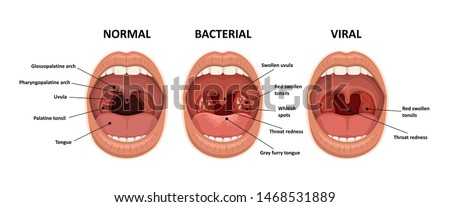 Tonsillitis bacterial and viral. Angina, pharyngitis and tonsillitis. Infection of tonsils. Open mouth Stock photo ©