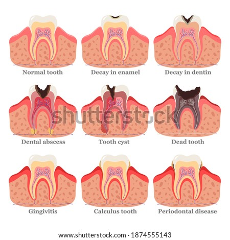 Tooth disorders set, flat vector illustration. Healthy and unhealthy teeth. Dental problems and diseases. Abscess, gingivitis, decay in enamel, decay in dentin, dead tooth, cyst, periodontal disease. Photo stock ©