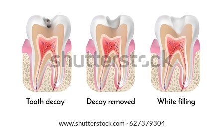 Tooth Decay Free Vector Art - (67 Free Downloads)