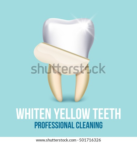 Tooth veneer whitening dental technician vector concept. Healthcare stomatology and cleaning professional teeth illustration