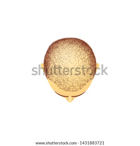Top view of male head with baldness cartoon style, vector illustration isolated on white background. Men's hairless scalp, stage of hair loss or alopecia, bald headed clipping