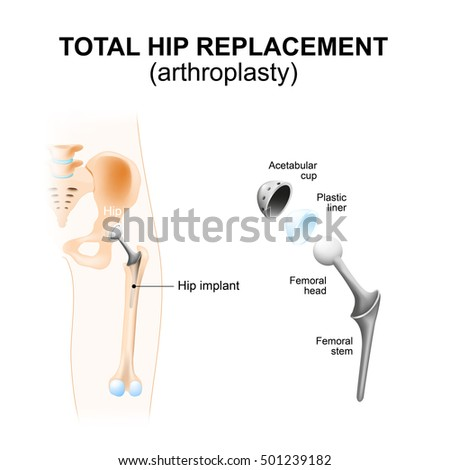 french hip prothesis Amplitude surgical, of valence, france, the leading french manufacturer of hip and knee implants, with more than 50, 000 implants inserted every year.