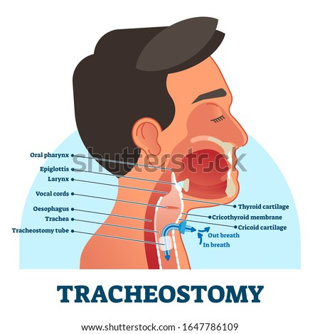 Tracheostomy cross section diagram, vector illustration labeled scheme. Intensive care unit equipment medical technology. Throat parts and tube location for breathing. Life assistance process setup. Stock photo ©