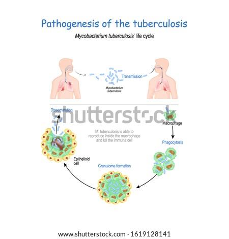 A Mycoplasma baktérium okozta betegségek