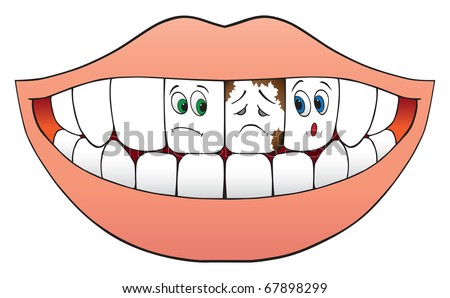 Two nervous teeth worried about the tooth between them which is obviously decayed and diseased