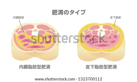 Type of obesity illustration (Japanese). Abdominal sectional View (visceral fat , subcutaneous fat). translation: Type of obesity, Visceral fat (obecity) , Subcutaneous fat (obecity).