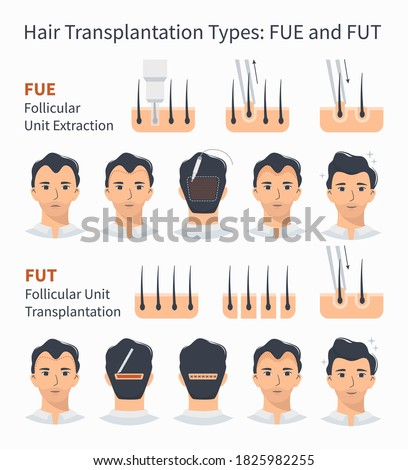 Types and stages of hair transplantation FUE and FUT Follicular Unit Extraction. Treatment of baldness, alopecia, mens hair loss. Vector medical infographics, a male head scalp. Strip, graft machine. Stock fotó ©