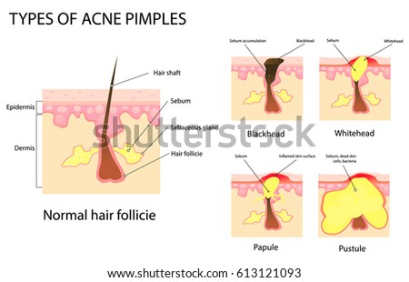 Free Acne Type Illustration Download Free Vector Art Stock