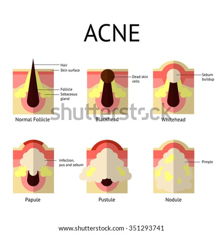 types of acne pimples healthy