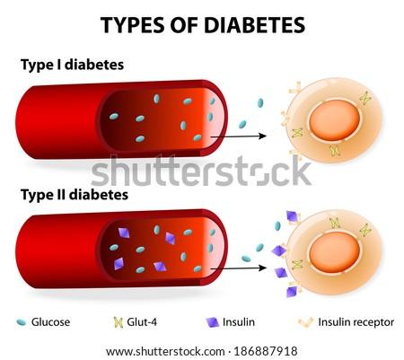 Management of type 2 diabetes mellitus ppt harrison