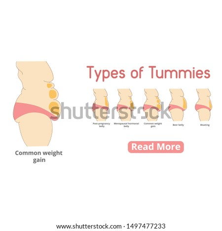 Types of female tummies banner. Tummy tuck surgery or abdominoplasty vector illustration. Post-pregnancy, menopausal hormonal belly, beer belly, bloating belly, common weight gain belly.