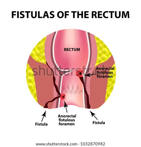 types of fistulas of the rectum