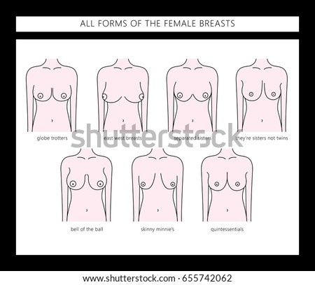 types of women's breast all