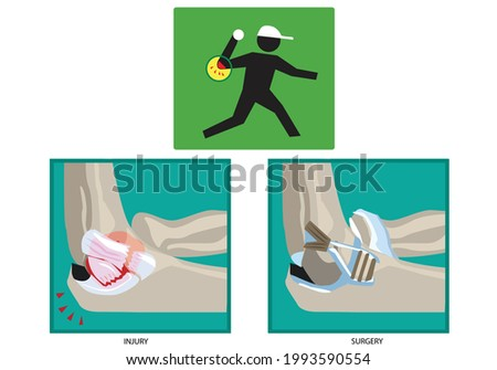 ulnar collateral ligament or