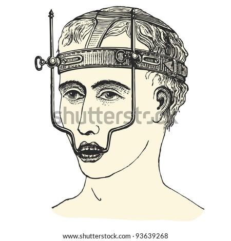 """Upper jaw fracture - vintage engraved illustration - """"Manuel des hospitalière et des garde-malaldes"""" edited by Librairie Poussielgue - Paris 1907 - stock vector"""