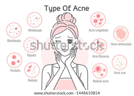 upset cartoon woman touch her face with  skin problems