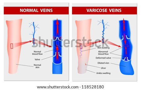 Varicose vein forms in a leg normal vein and varicose vein vector