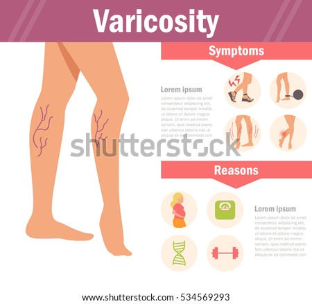 varicosity vector cartoon