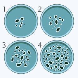vector bacteria in 4 growth stages. bacterium in petri dishes isolated on white background.