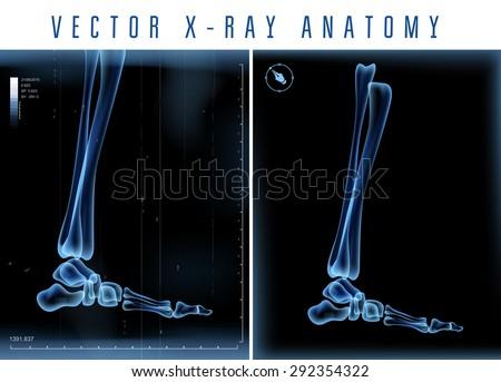 vector 3d x ray transparent leg