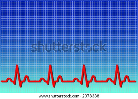 Vector Format Of An Ecg Ekg. The Waveform Is Accurate And ...