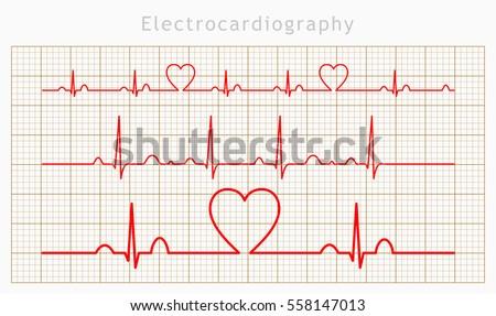Vector Heart cardiogram charts set