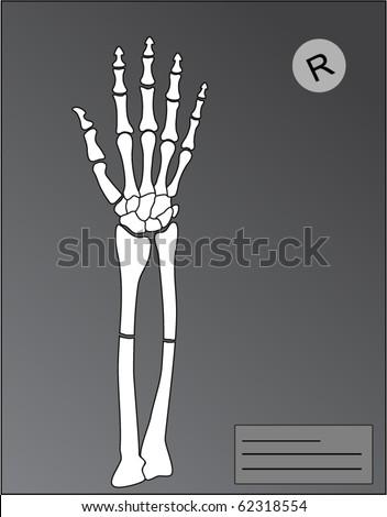 vector human hand roentgen