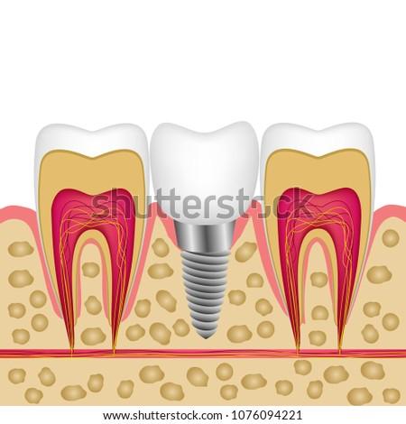 vector illustration of a dental