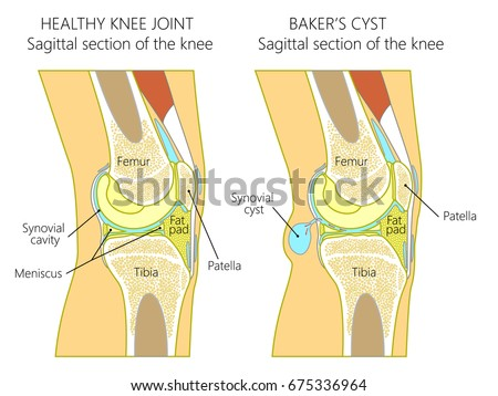 Vector illustration of a healthy human knee joint and unhealthy knee with Baker's cyst. Anatomy of human knee, sagittal section of the knee. for advertising and medical publications. EPS 10. Foto d'archivio ©
