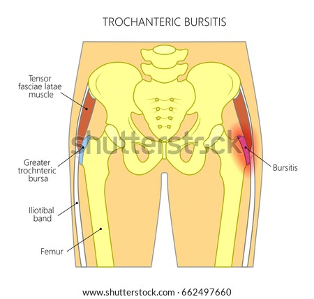 Vector illustration of a human pelvis and hip with pain in the hip joint and trochanteric bursitis. Front view. For advertising and medical publications. EPS 10.