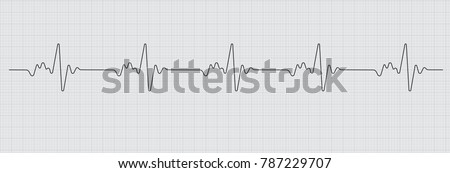 Vector illustration of HyperQ diagnoses heart disease cardiogram