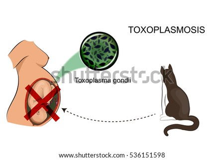 vector illustration of infection of a pregnant woman, for medical publications
